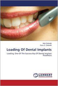 Loading of Dental Implants