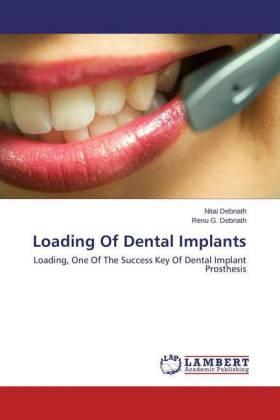 Loading Of Dental Implants - Loading, One Of The Success Key Of Dental Implant Prosthesis - Debnath, Nitai / Debnath, Renu G.