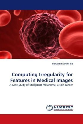 Computing Irregularity for Features in Medical Images - A Case Study of Malignant Melanoma, a skin cancer - Aribisala, Benjamin